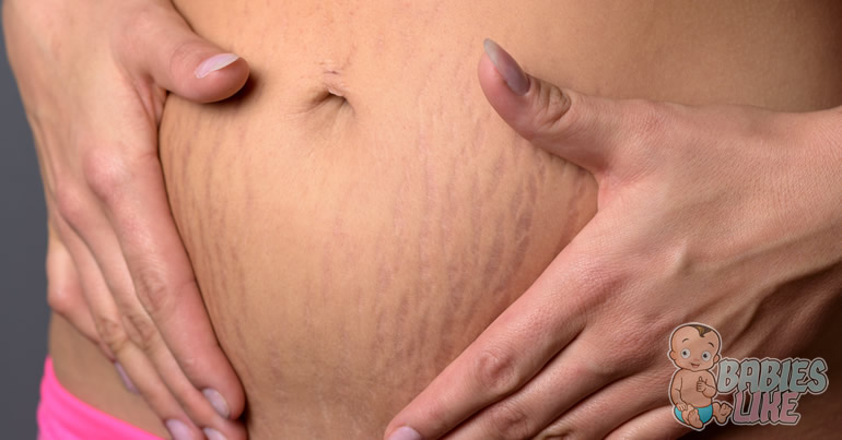 Will Tanning Help My Stretch Marks?